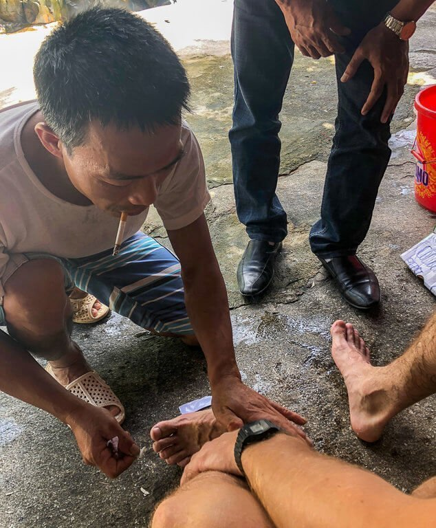 Mark having a leech removed in Vietnam hiking tips for beginners